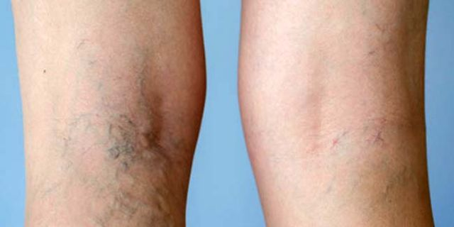 4 Proven Tips on how to get rid of varicose veins naturally.